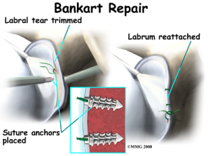 Open Bankart Surgery - Source: eorthopod.com