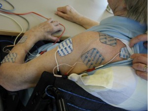 Shoulder Electrical Stimulation - For the record that isn't my shoulder.